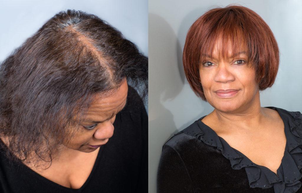Volumateur-Nouvel-Hair-avant-apres